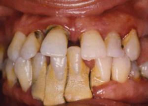 bocca con malattia parodontale, piorrea