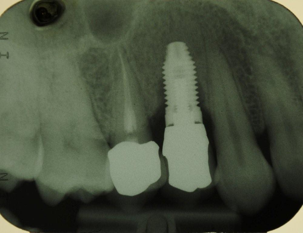 peri-implantiti